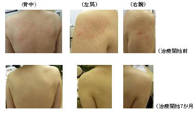 乾燥性皮膚炎に漢方-症例-皮膚が痒くて物忘れ?