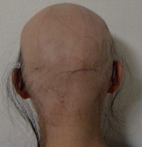 漢方服用で、髪の毛が生えました~全身脱毛症の患者様が、美容院に行けた日~